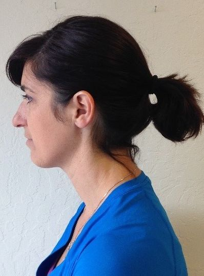 side profile of patient